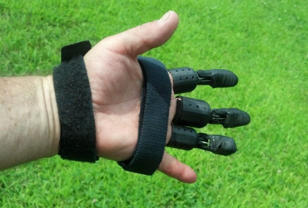 Prosthetic-Hand_RECFX