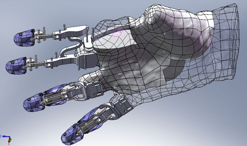 SOLIDWORKS 3D CAD can help design life-changing prosthetics.