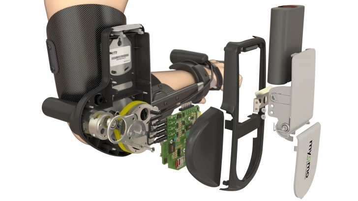 Myomo Develops Custom, Fabricated Devices to Assist Paralyzed Users
