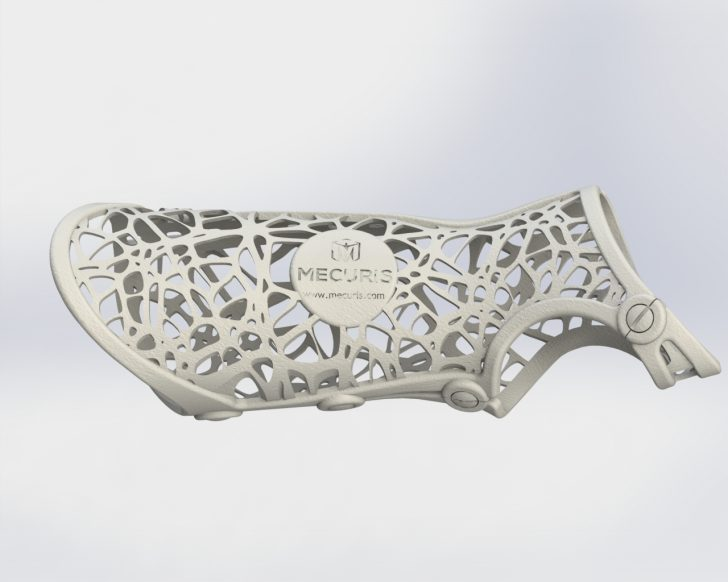 Mecuris Improves Orthopedic Care with SOLIDWORKS and Additive Manufacturing