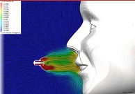 """SOLIDWORKS Webinar-Serie """"Simulation Klinik"""": Teil 3 – Sofort tief Durchatmen mit Strömungssimulation"""