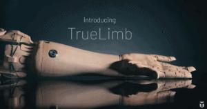 TrueLimb Prothese von Unlimited Tomorrow
