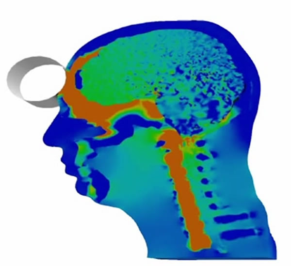 Simulia TBI Simulating Brain Injury